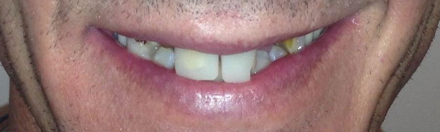 Before Implants Widget
