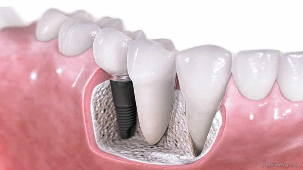 Drawing of Dental Implants Next to Original Teeth