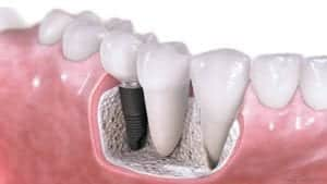 dental implant interior diagram