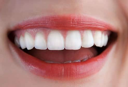 patient smiling with implants-bridge