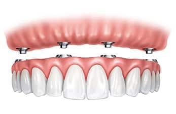 diagram-of-dental-implants-1
