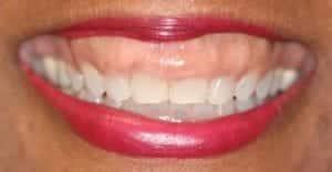 gummy smile patient