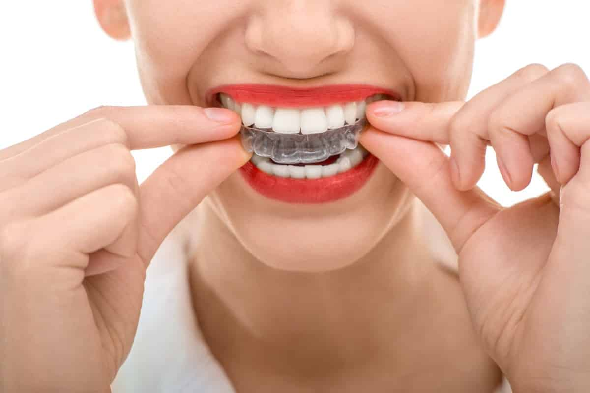 some facts about invisalign