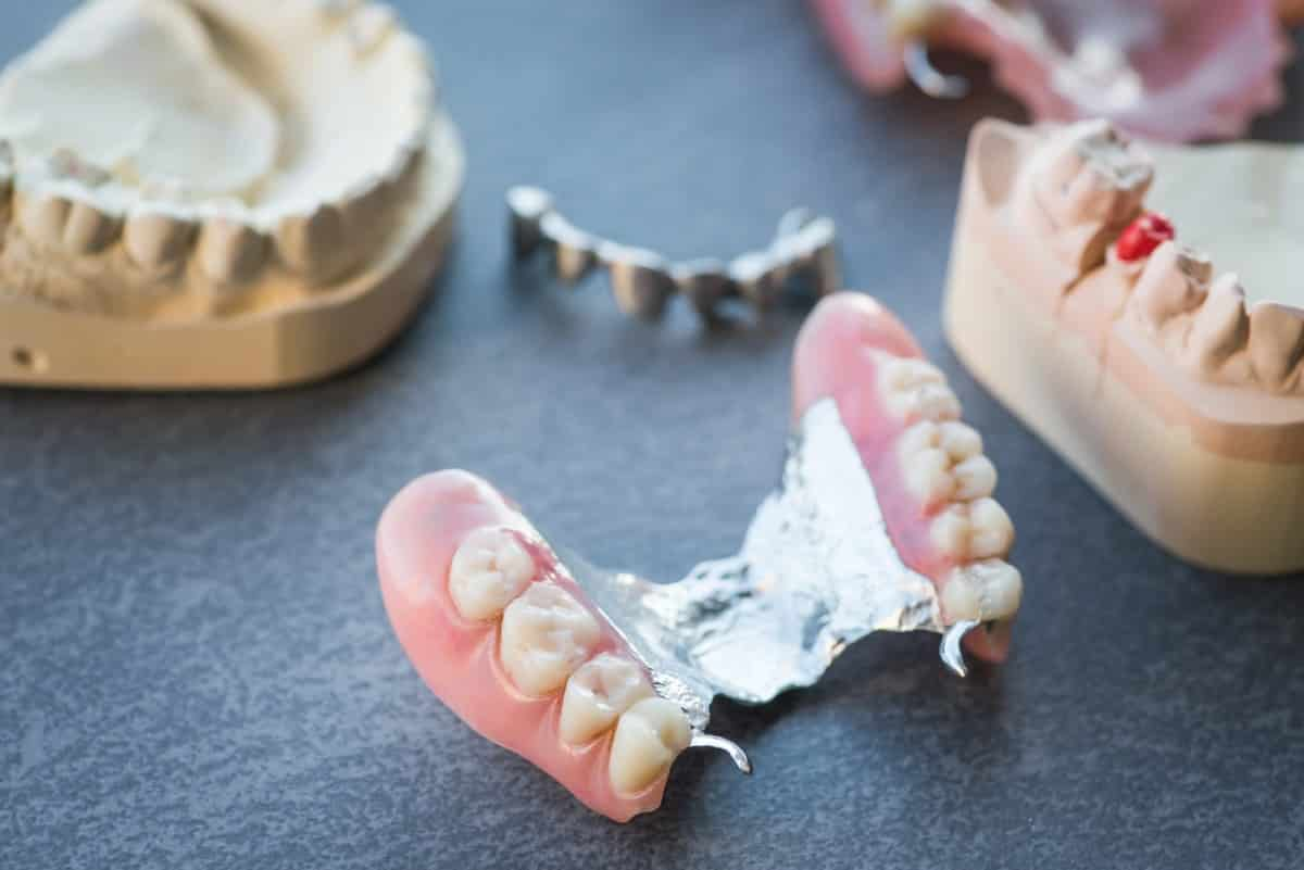 why you should remove tori before getting dentures